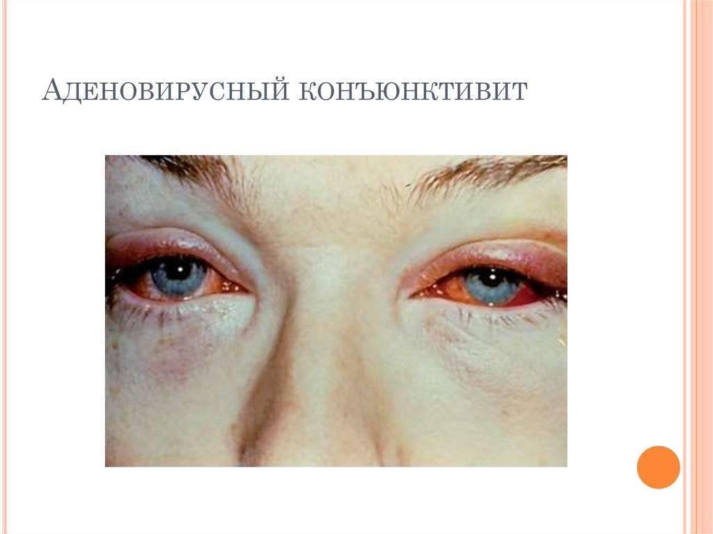 Аденовирусный конъюнктивит у детей: лечение и симптоматика
