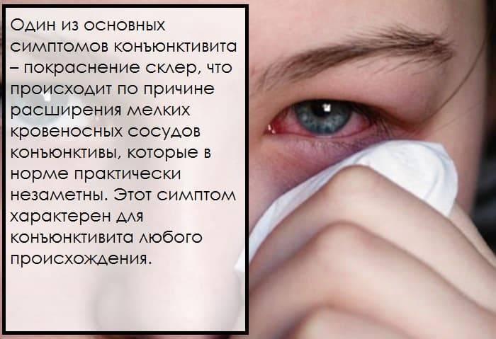 Первый шаг к избавлению от дискомфорта: по каким причинам слезятся глаза на улице?