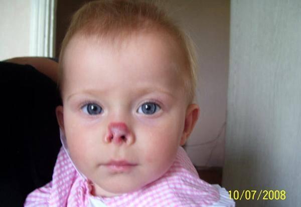 Травмы у детей: первая помощь. лицо и голова: 6 самых опасных мест. получение травмы головы или лица. что делать, если травму получил ребенок?