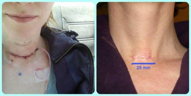 последствия после удаления щитовидной железы у мужчин