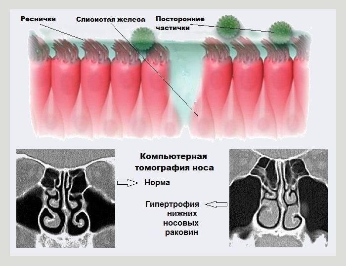 гипертрофия носовых раковин лечение