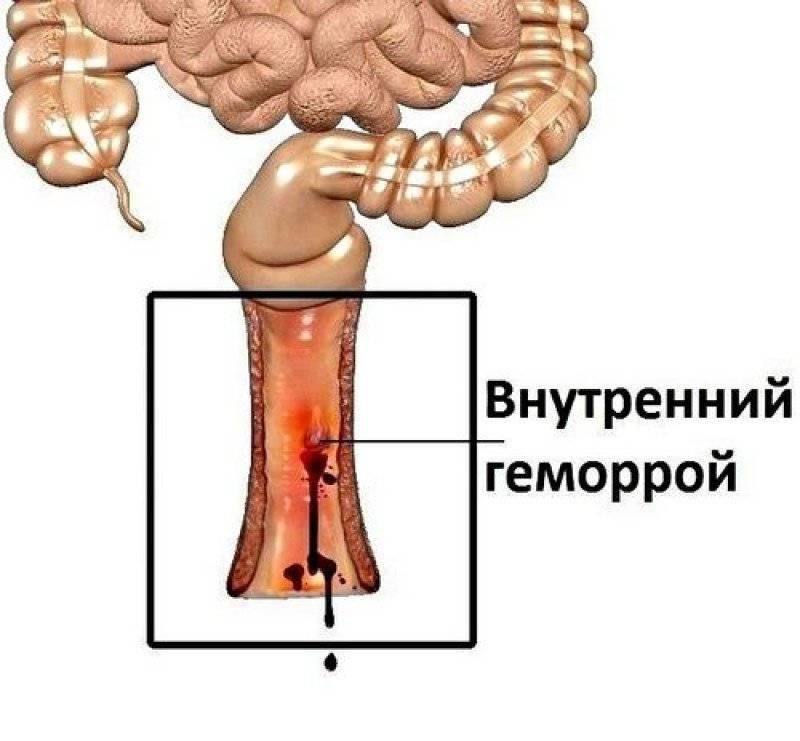 при внутреннем геморрое симптомы