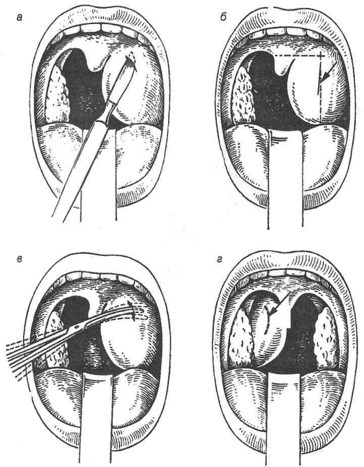 Заглоточный абсцесс — причины, симптомы, диагностика и лечение