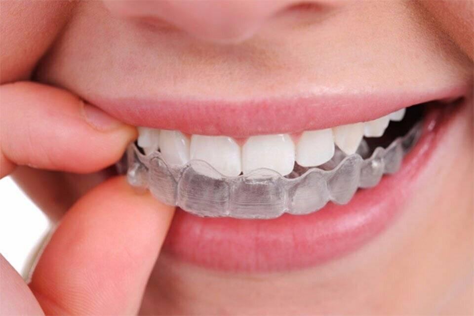 как ставят пластинки на зубы