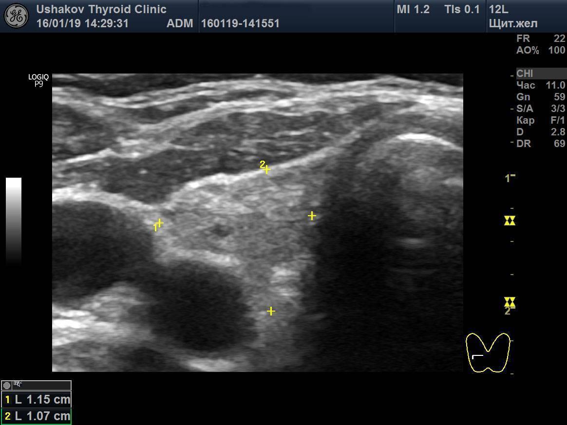 Гипоплазия щитовидной железы у взрослых и детей