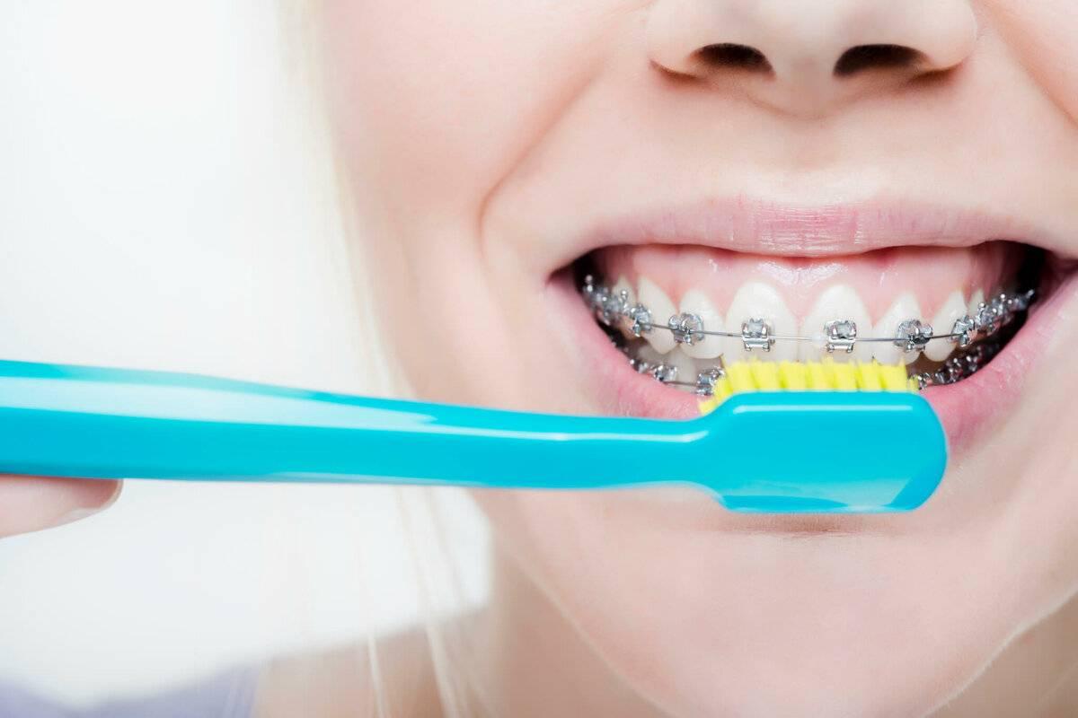 Как правильно чистить зубы с брекетами после еды с помощью: зубной щётки; специальной ортодонтической зубной щётки; монопучковой щетки; ёршиком; зубной нитью; ирригатором для полости рта. что нельзя есть если носишь брекеты