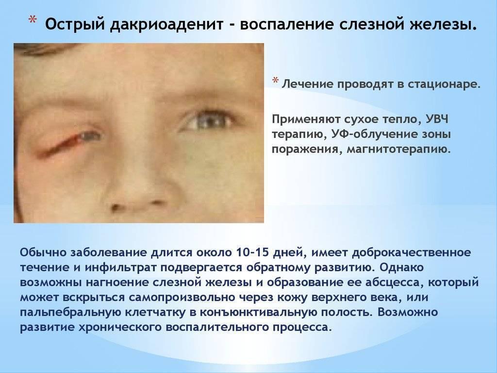 Дакриоаденит - симптомы болезни, профилактика и лечение дакриоаденита, причины заболевания и его диагностика на eurolab