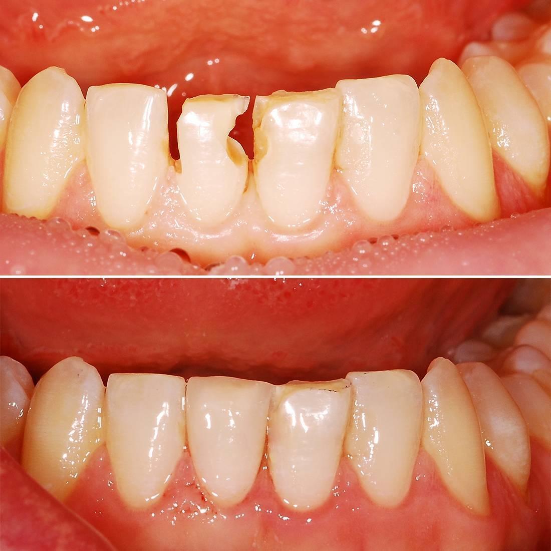 Художественная реставрация зубов в москве, цены в стоматологии «президент»