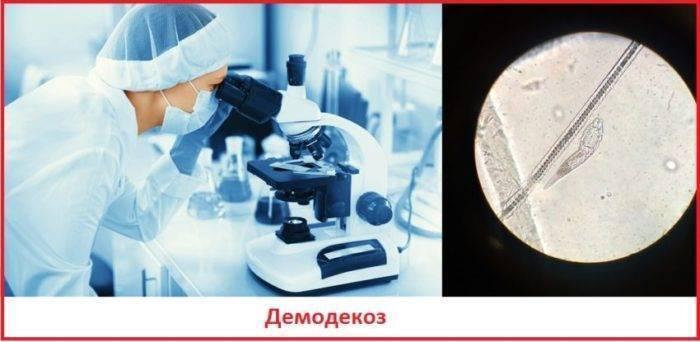 анализ на демодекс подготовка