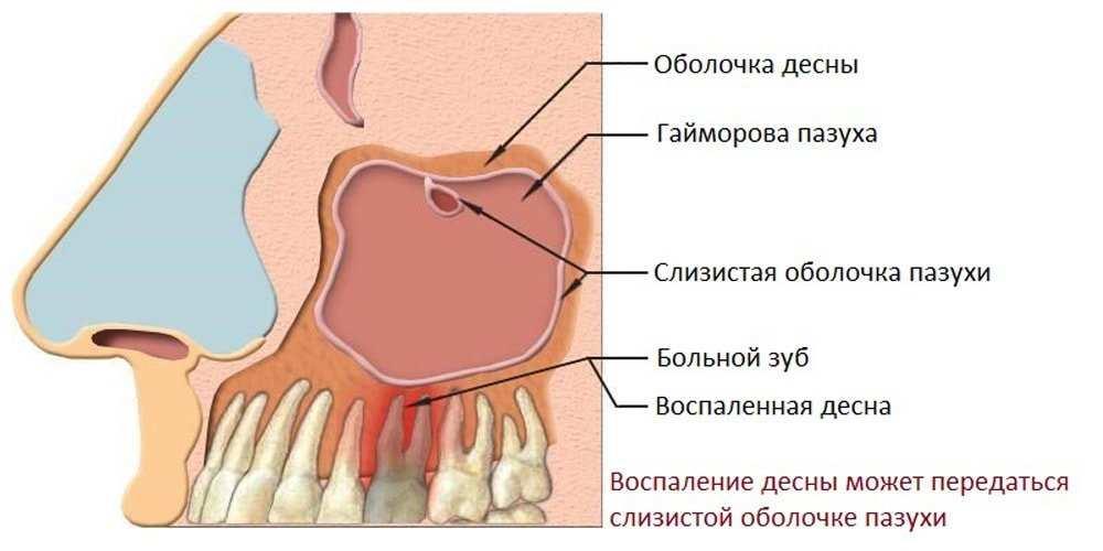 гайморит болят зубы