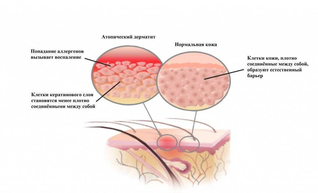 мокнущий дерматит лечение у детей