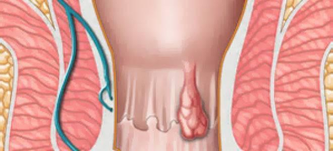 лечение геморроя 3 стадии без операции