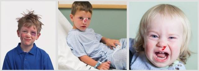 Перелом носа у ребенка: признаки и первая помощь