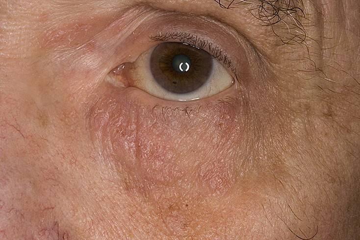 Псориаз на глазах и веках