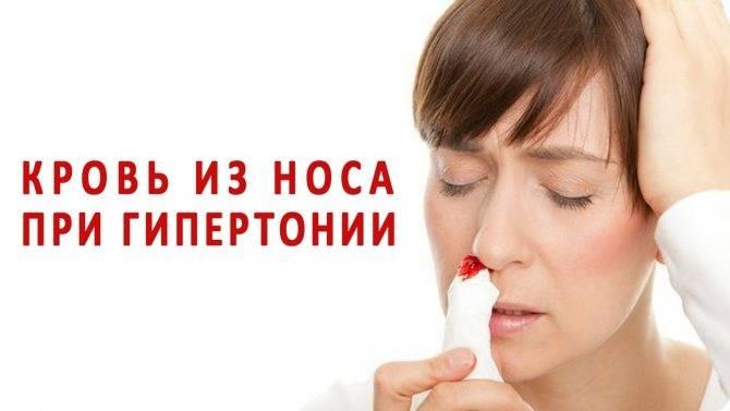 Кровь из носа: причины у взрослых и детей, как остановить кровотечение