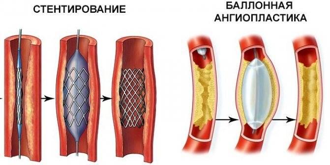 Баллонная ангиопластика коронарной артерии