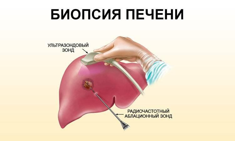 биопсия печени последствия