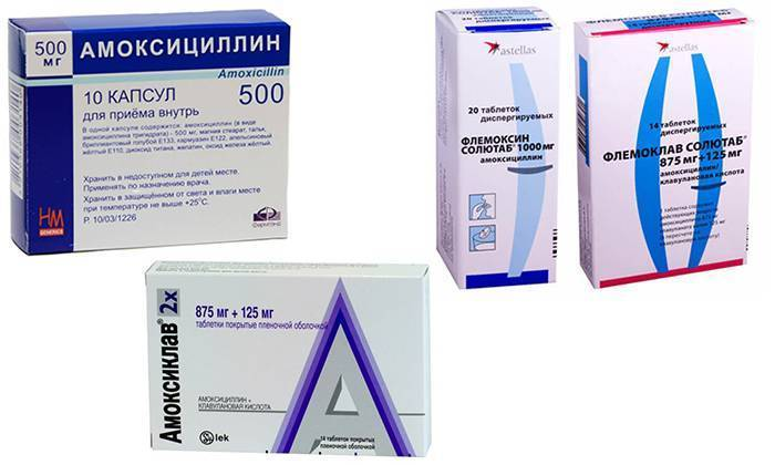 ларинготрахеит антибиотики