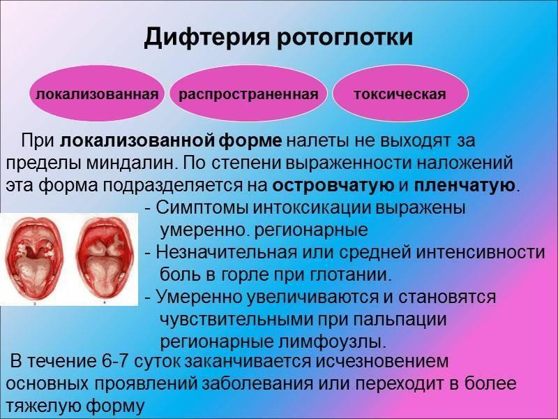 Дифтерия или ангина? различить болезни поможет уникальный симптом