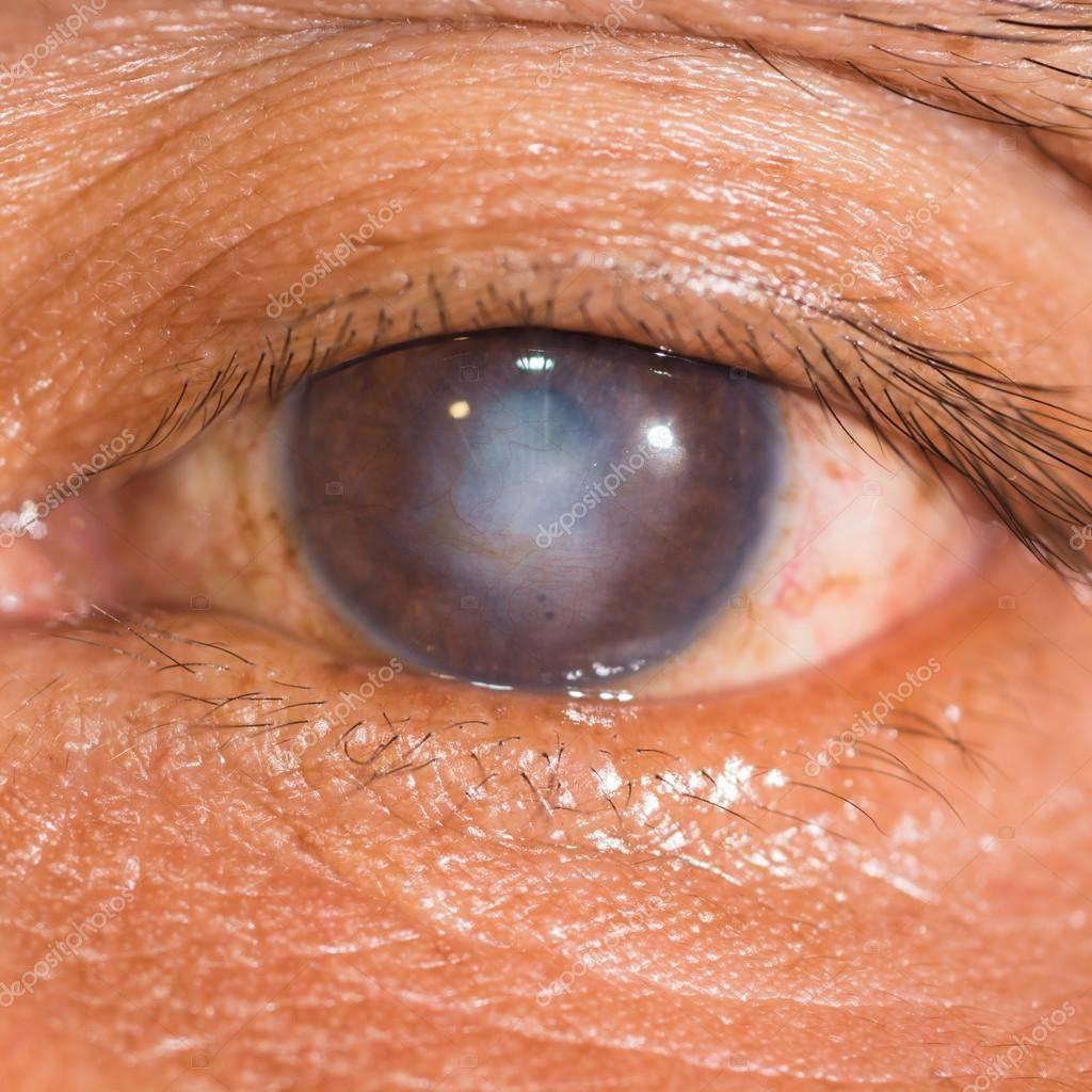 Эрозия роговицы, причины, лечение эрозии роговицы. все о глазных болезнях.