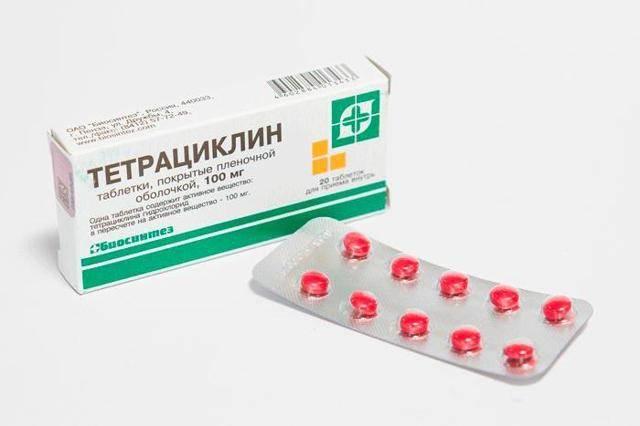 Холангит — симптомы и лечение