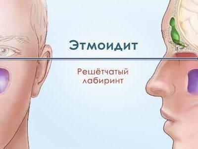 как лечить этмоидит
