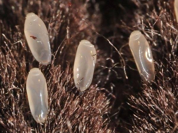 Вши головные: цикл развития и стадии жизни, жизненные особенности и размножение