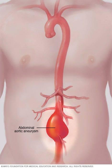 что такое атеросклероз брюшной полости