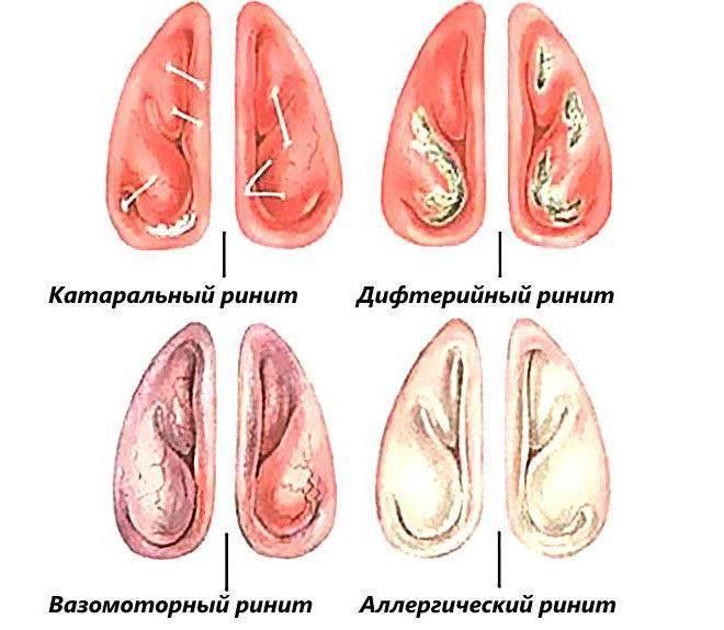 катаральный ринит симптомы