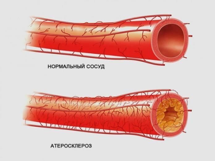 атеросклероз легких