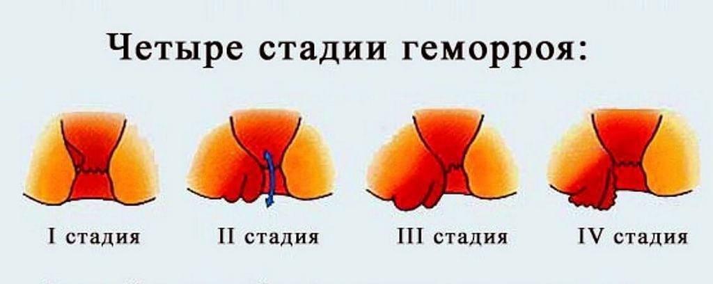 Геморрой при беременности в 3 триместре (26 фото): как лечить на 38, 39 и 40 неделе и 7 месяце, свечи и мази