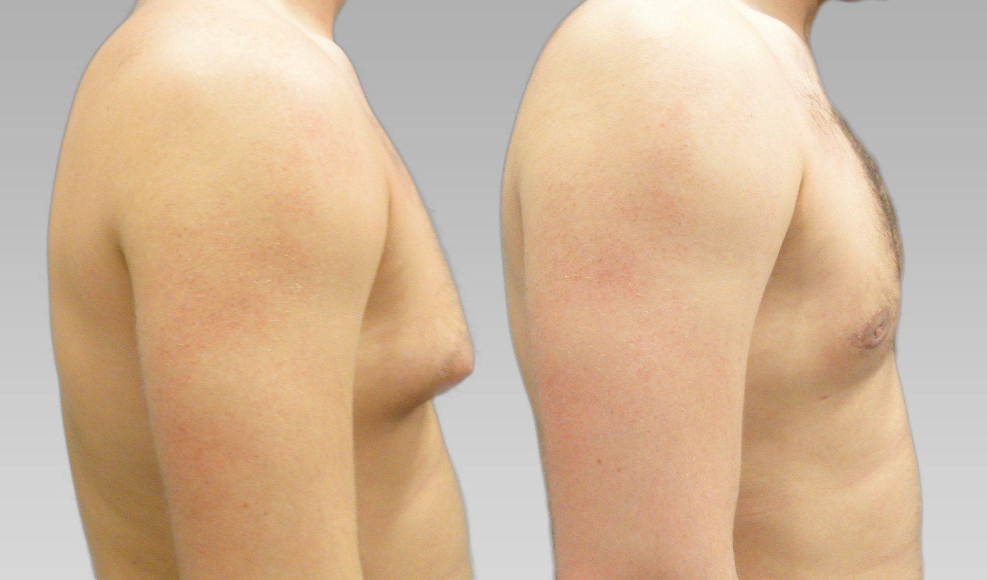 Гинекомастия у мужчин: симптомы и лечение