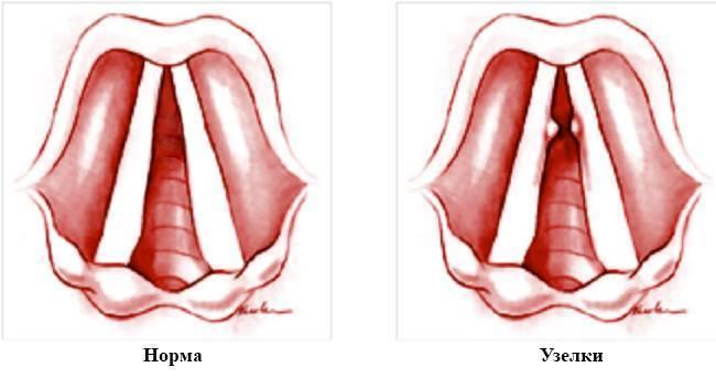 Лечение певческих узелков на голосовых связках, что такое узелки голосовых связок и как их лечить