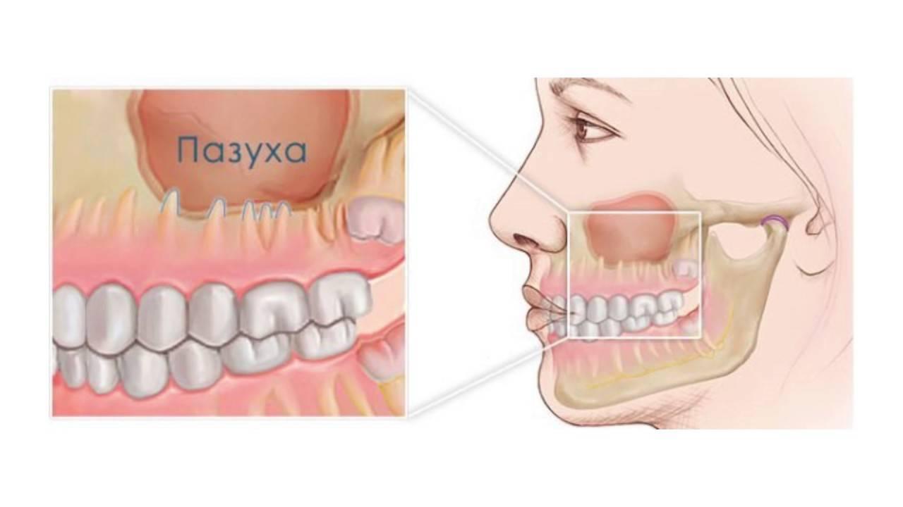 боль в зубах при гайморите