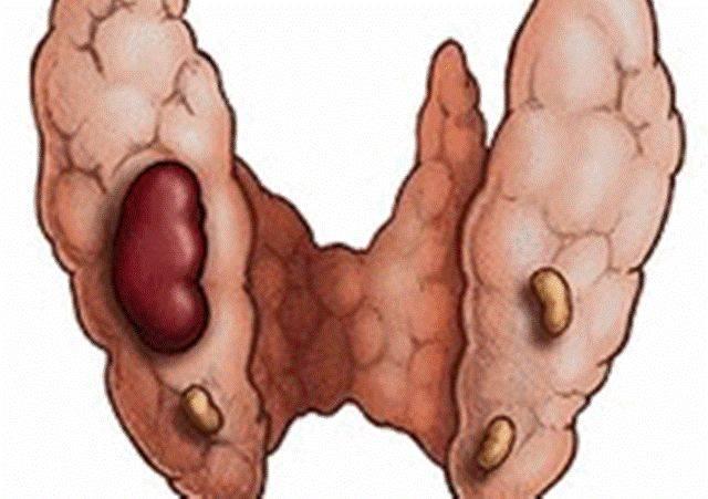 Заболевания щитовидной железы у мужчин и женщин