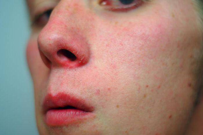 Симптомы и лечение герпеса под носом
