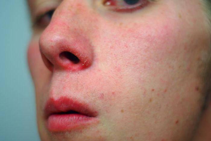 Мазь при стафилококке в носу