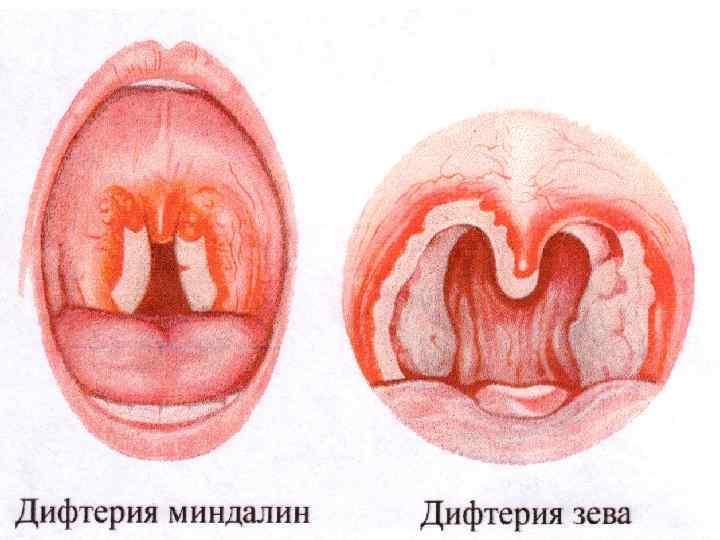 Дифтерия - чем опасна и как лечить - первые симптомы