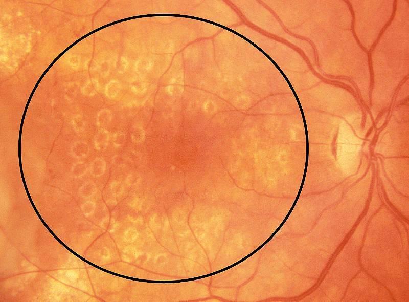 отек сетчатки глаза лечение народными средствами