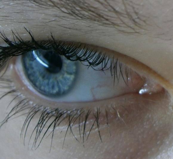 на белке глаза серое пятно