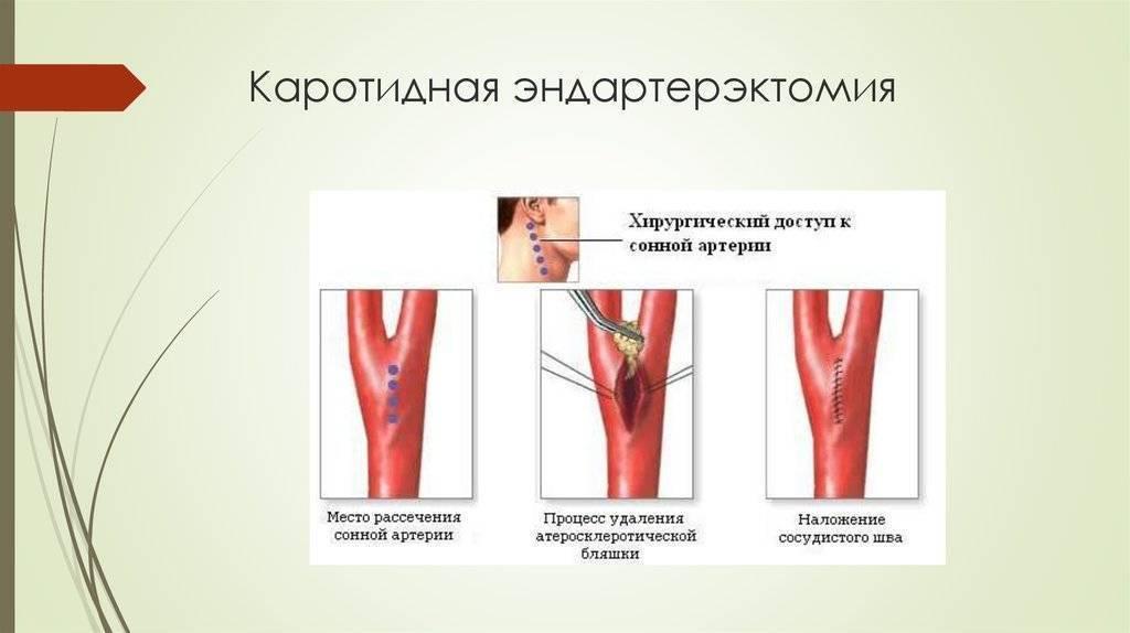Каротидная эндартерэктомия: как выполняется операция, осложнения