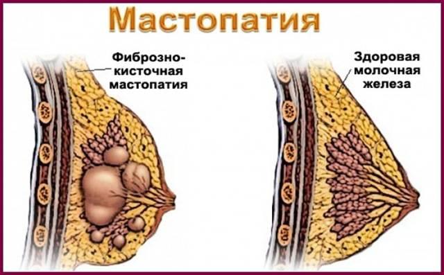 Что происходит с лимфоузлами при мастопатии