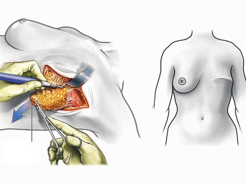 Лечение лазером доброкачественных образований молочной железы