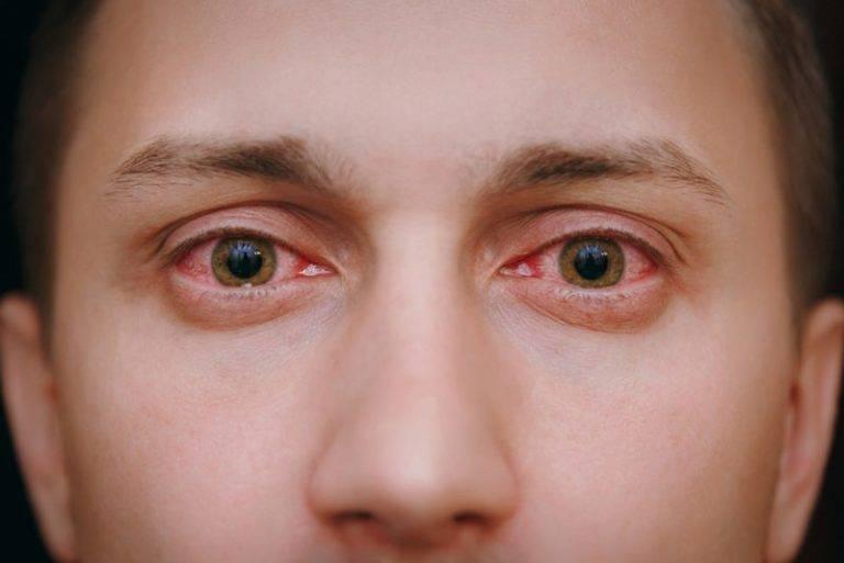красные глаза с утра
