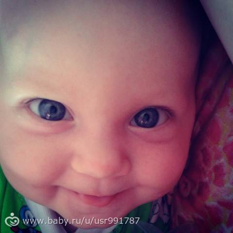 Почему у детей мешки под глазами и стоит ли их бояться