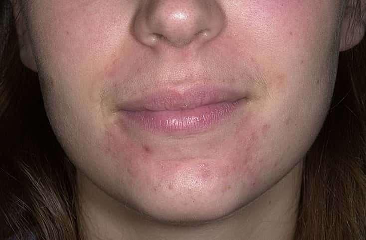 атопический дерматит на лице у ребенка