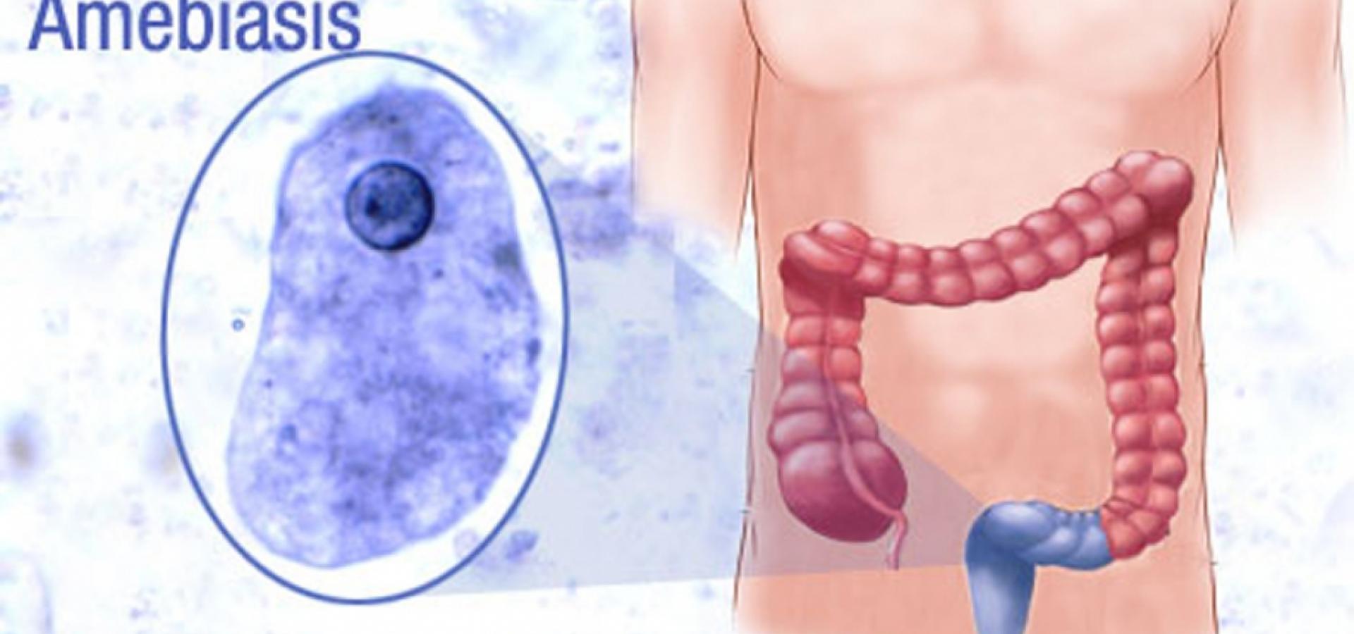 симптомы амебиаза у взрослых