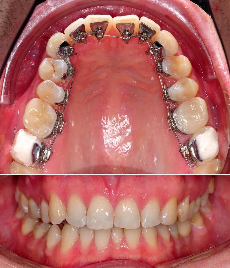 Установка внутренних брекетов на зубы: цена, отзывы