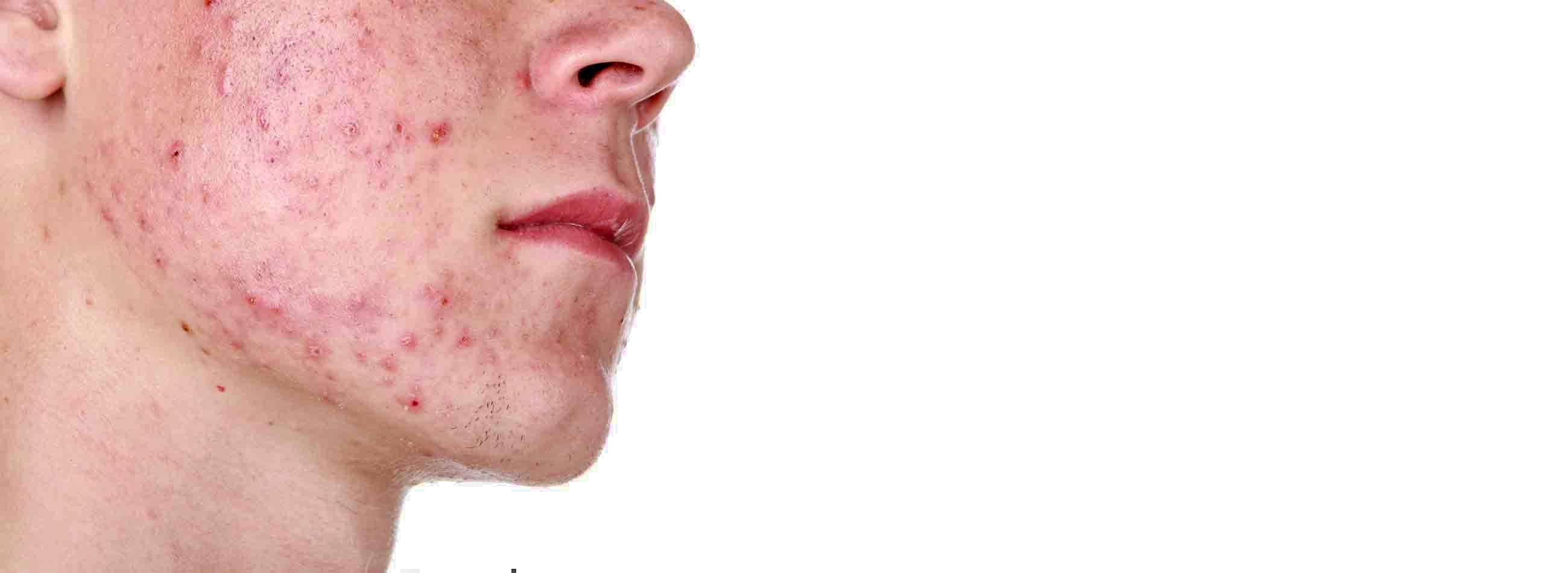 клещ лицевой