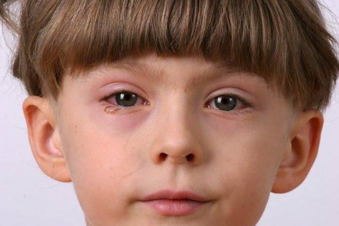 Виды блефарита: симптомы и лечение. как лечить блефарит у маленьких детей? блефарит у новорожденных лечение